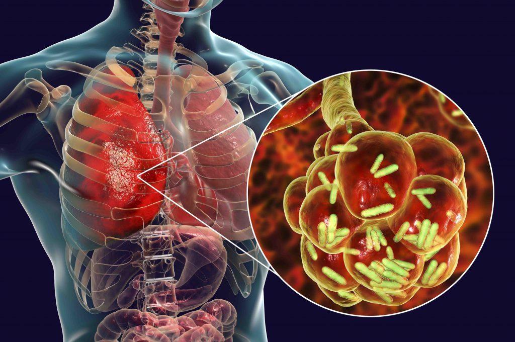Polmonite: Cosa non Sai sulla Malattia