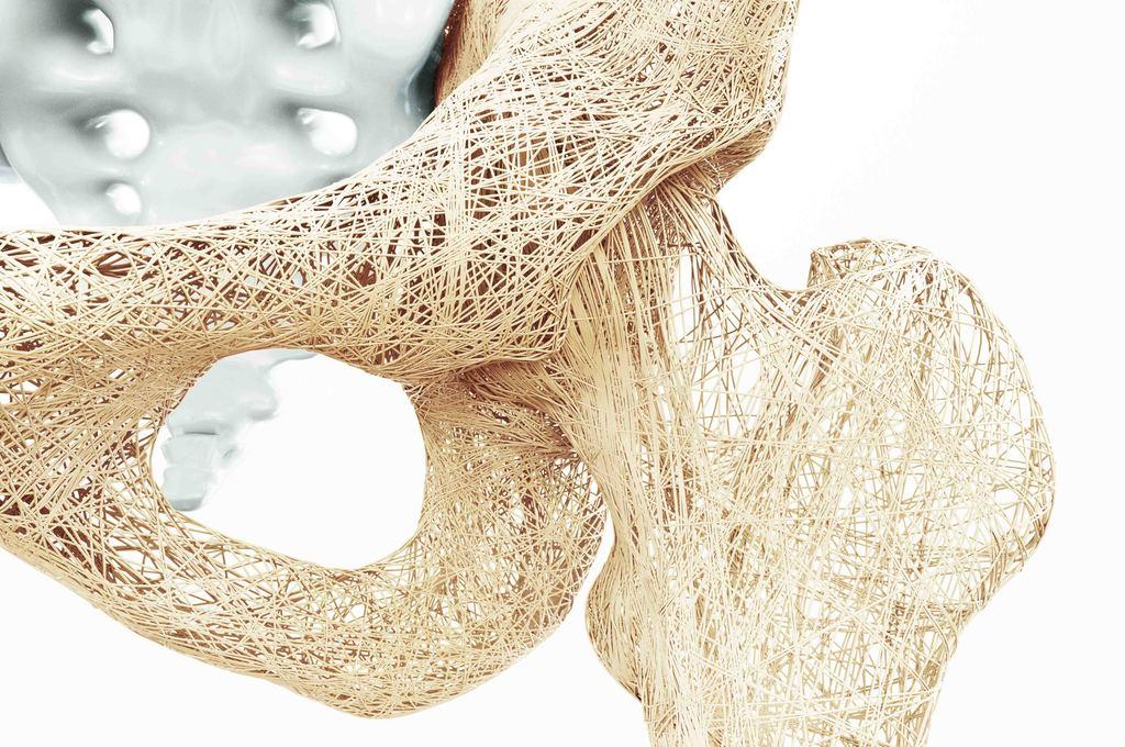 Osteoporosi e terapia ormonale sostitutiva