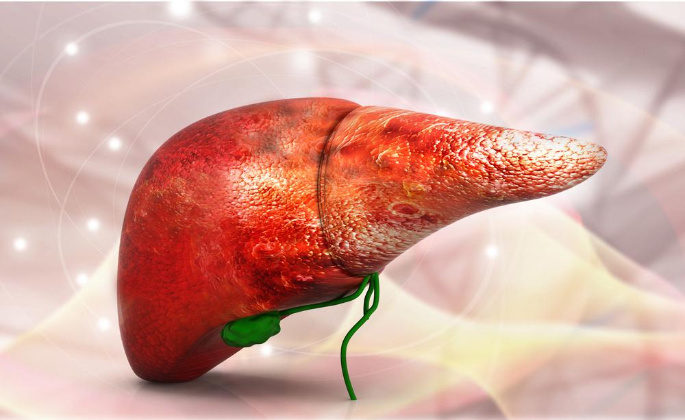 Calcoli Biliari: Regole Alimentari per Prevenirli e Mantenere Sano il Fegato