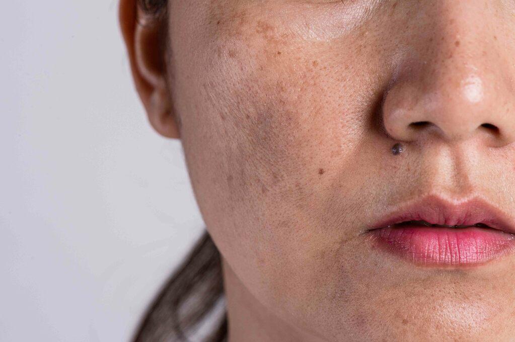 Macchie pelle: cosa sono