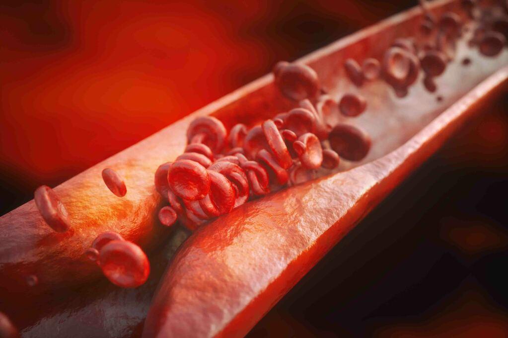 Colesterolo alto: Sintomi e segni