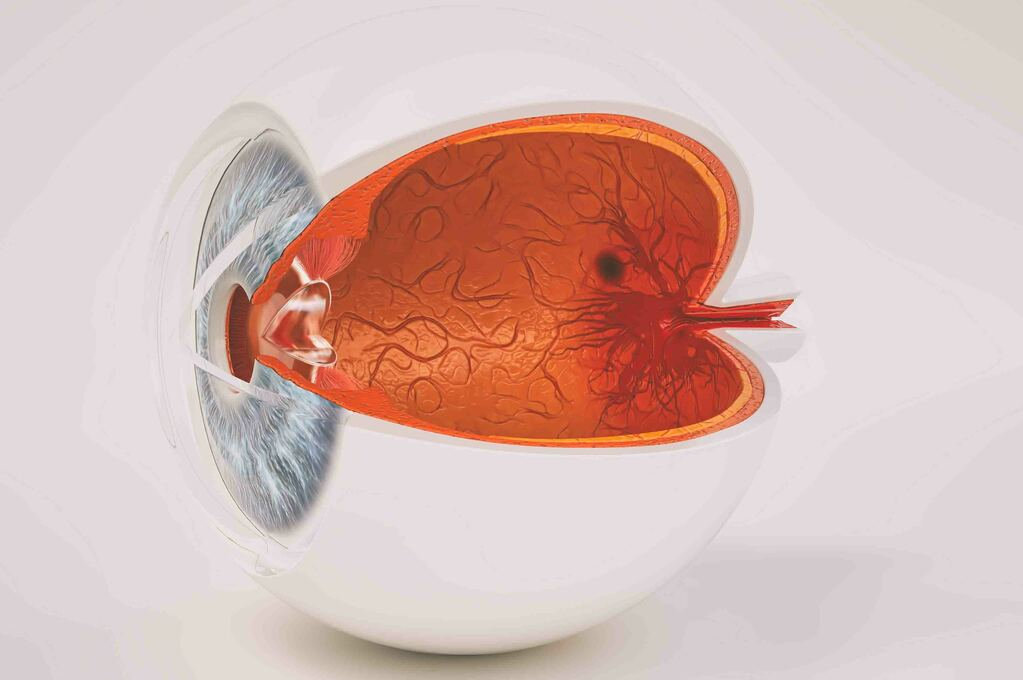 Melanoma dell'occhio