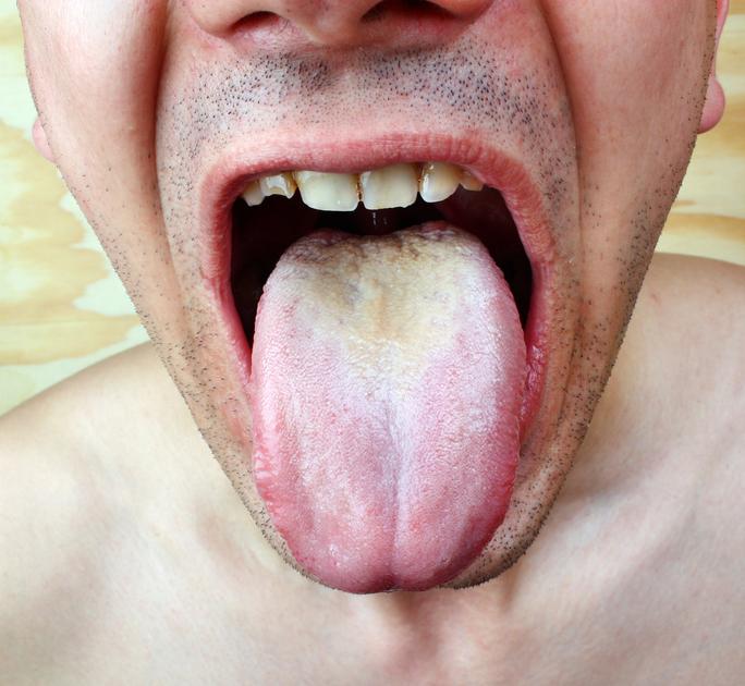 candida della bocca sintomi