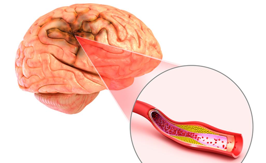 Таблетки от сердца при гипертонии - Dellipertensione I-II grado