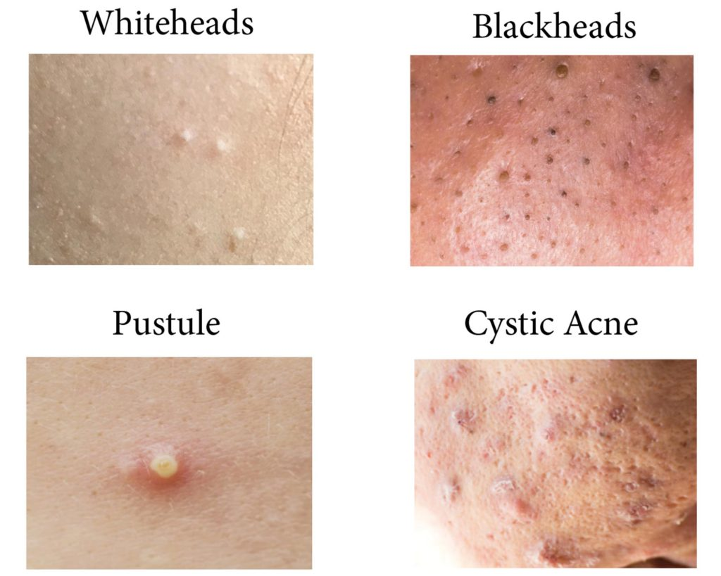 Different acne manifestations