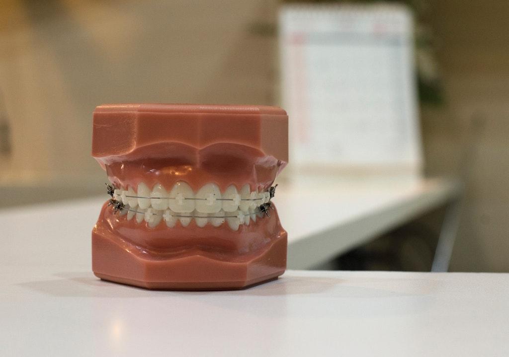 Denture image.