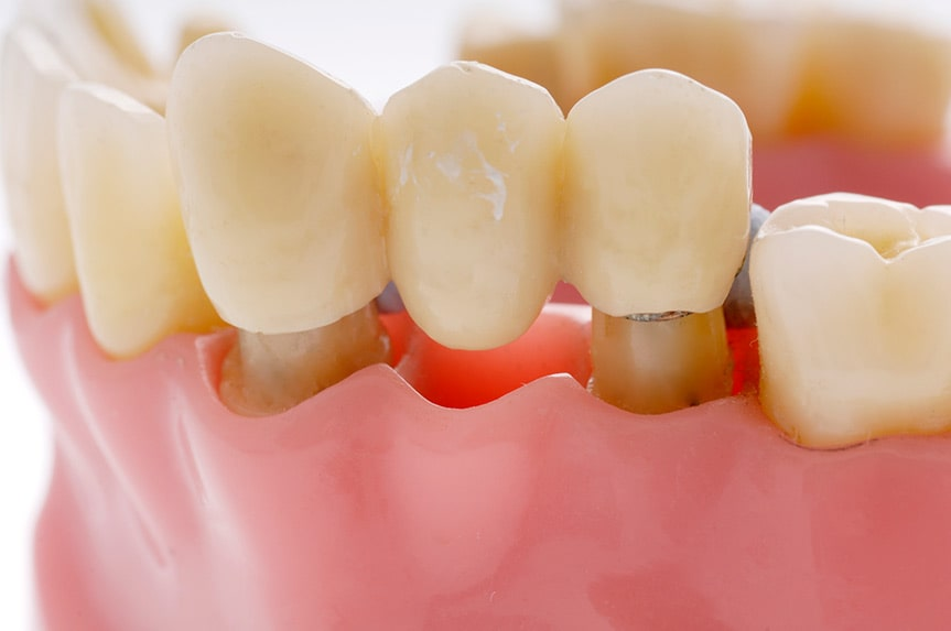 A cap over each tooth on opposite sides of the gap act as columns for the bridge, which replaces the missing teeth.