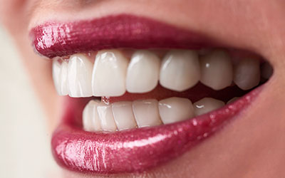Aesthetic Dentistry - Theeth Whitening, Prodent Care, San Gwann, Malta