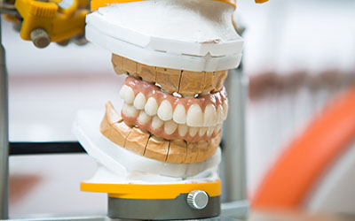 Dental Implantology - Prodent Care, San Gwann, Malta