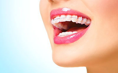 Orthodontic Treatment and Braces - Prodent Care Dental Clinic, San Gwann, Malta