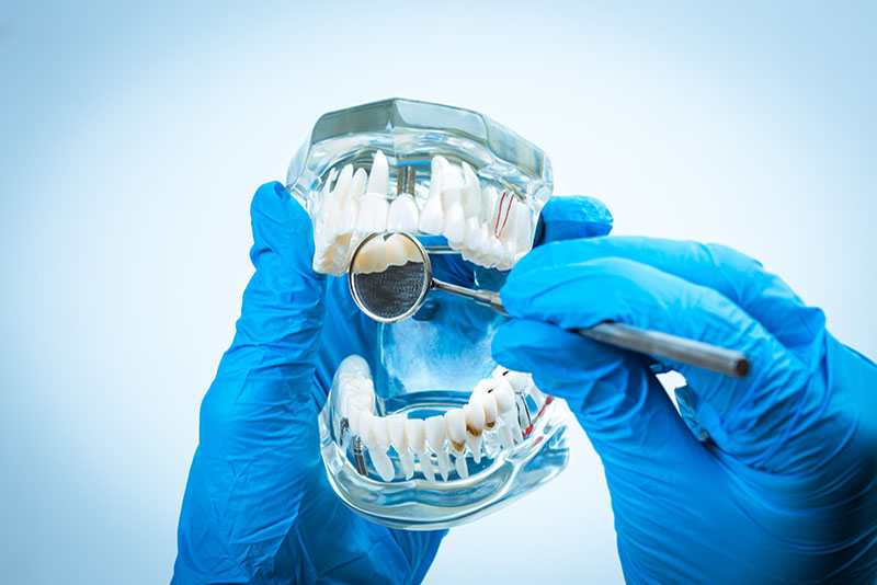 About Implant Dentistry
