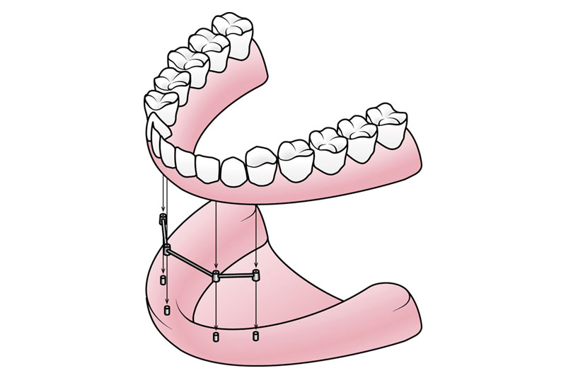 D) Implant Supported Dentures