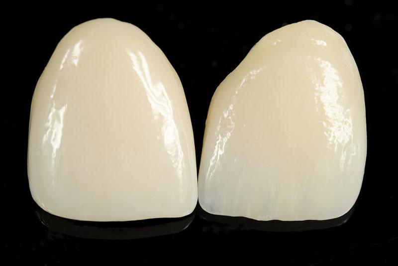 A) Porcelain Veneers