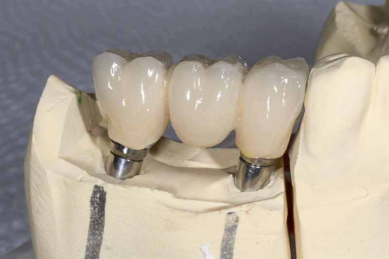 C) Replacement of Multiple Missing Teeth
