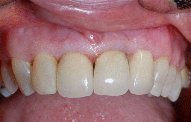 Single tooth replacement AFTER