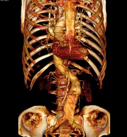 КТ аорты