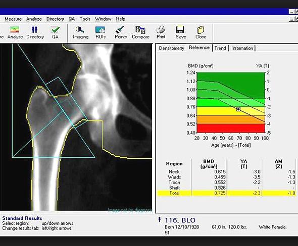 Денситометрия – анализ на остеопороз