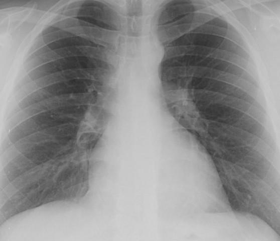 Рентген или КТ легких