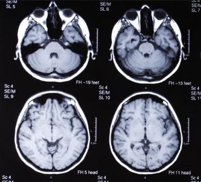 МРТ головного мозга с введением контраста