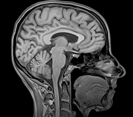 Что показывает МРТ головного мозга и шейного отдела