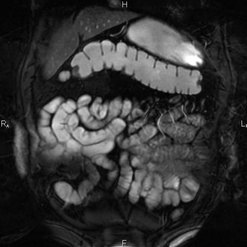 МРТ кишечника и прямой кишки