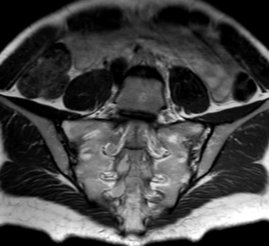 МРТ крестцово-подвздошных сочленений
