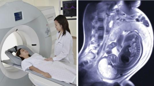 МРТ при беременности