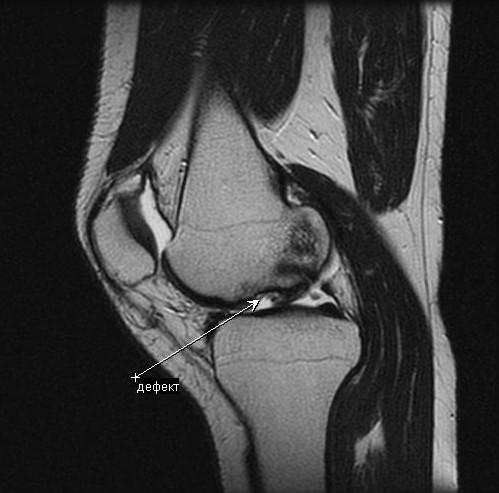 Что показывает МРТ суставов