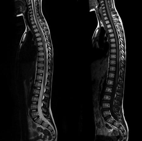 Полное МРТ позвоночника
