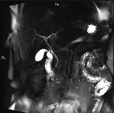МРТ печени и желчного пузыря