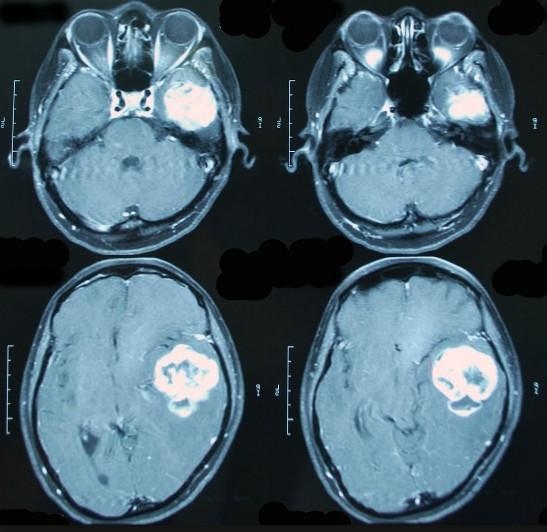 Когда делают МРТ с контрастом