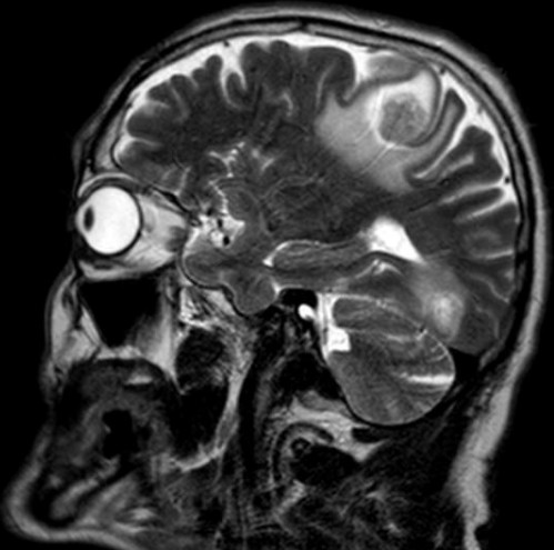 Виды МРТ головы