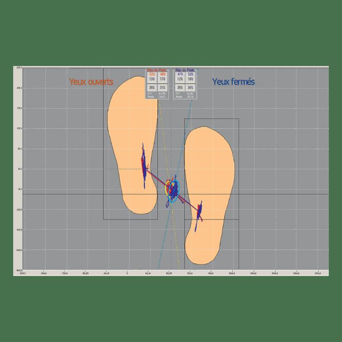 Pedana Stabilometrica Cyber-Sabots - Diagramme delle asimmetrie