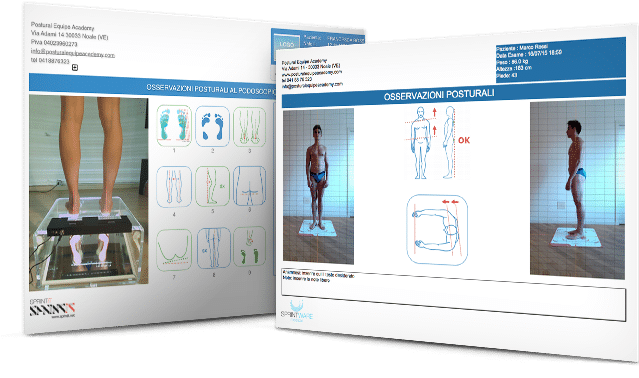 Esempi di esame posturale a 4 foto con SprintWARE Medical