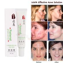 100% эффективный крем от акне для женщин и мужчин прыщи быстро восстанавливают акне шрамы ремонт красных пятен уход за лицом натуральное растение SNAZII 32550960365