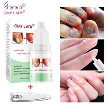 OMYLADY гель для ухода за ногтями Лечение ногтей от грибка удалить онихомикоз ногтей питательный эффективны против ногтей рук и уход за ногами-in Обработка ногтей from Красота и здоровье on Aliexpress.com | Alibaba Group OMY LADY 32959281305