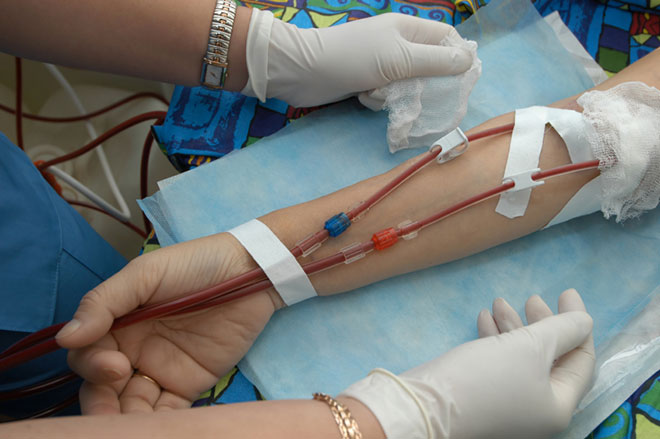 Rapport Véran : don du sang des homosexuels et recadrage de la filière sang