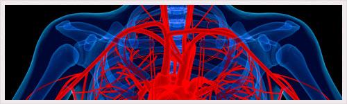 Anévrisme de l'aorte abdominale : identification d'un gène