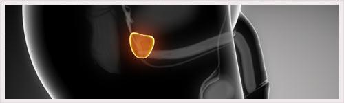 Cancer de la prostate : découverte encourageante pour de futurs traitements