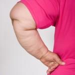 Chirurgie de l'estomac et diabète de type 2