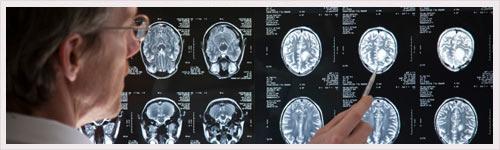 Lueur d'espoir contre Alzheimer, Parkinson, SEP et cancers