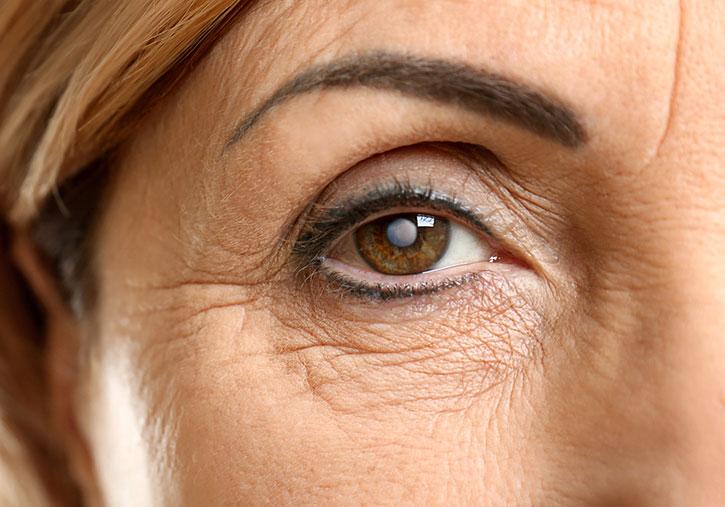 La mortalité des femmes âgées est moindre après chirurgie de la cataracte