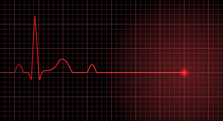 injection de Shenfu dans le traitement de l'arrêt cardiaque