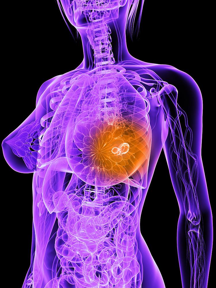 Cancer du sein à récepteurs aux œstrogènes positifs : hormonothérapie et récidive au long terme