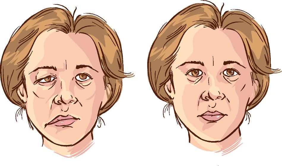 Identification sociétale de la paralysie faciale et de sa localisation