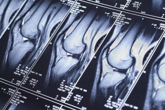 Reconstruction du ligament croisé antérieur du genou