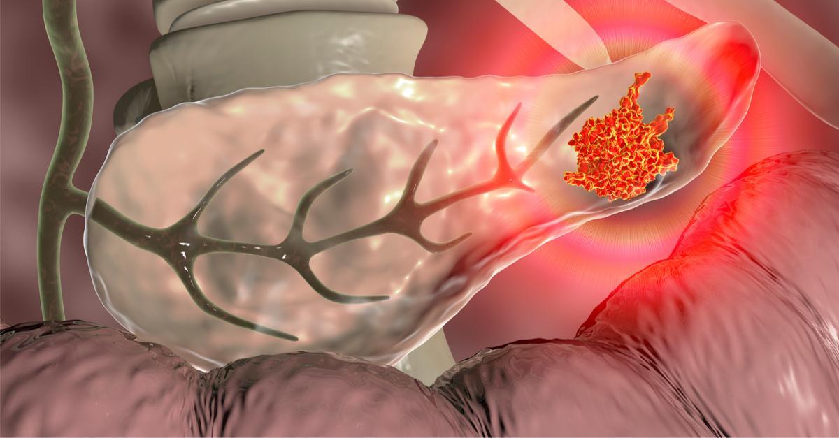 Cancer du pancreas: diagnostic et traitements