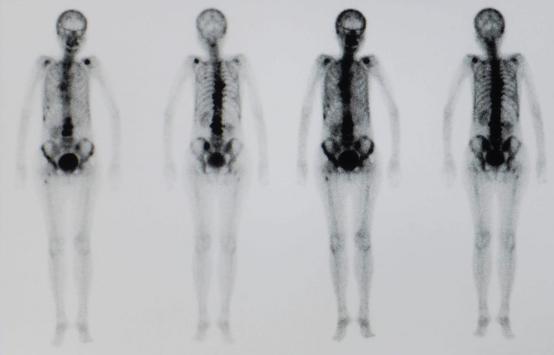 Scintigraphie et PET-scan en cancérologie