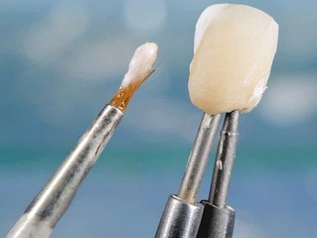 Dentaltechnik G. Stutzer