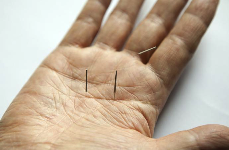 Acupuncture Rachel Cavanagh - Blainville